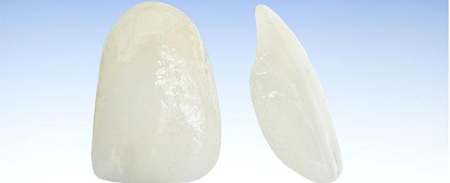 Teeth Veneers Adelaide